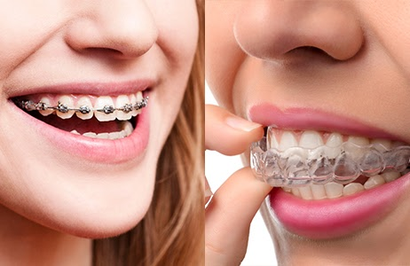 This is the image for the news article titled Invisalign vs. Braces